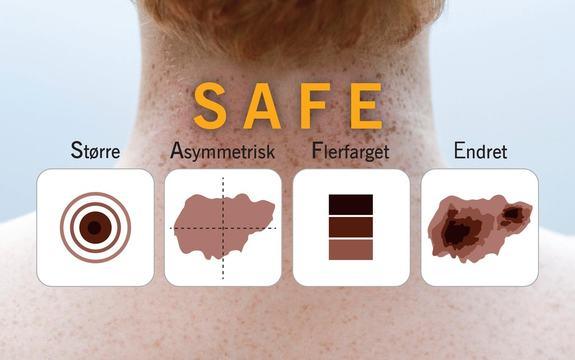 safe illustrasjonsbilde