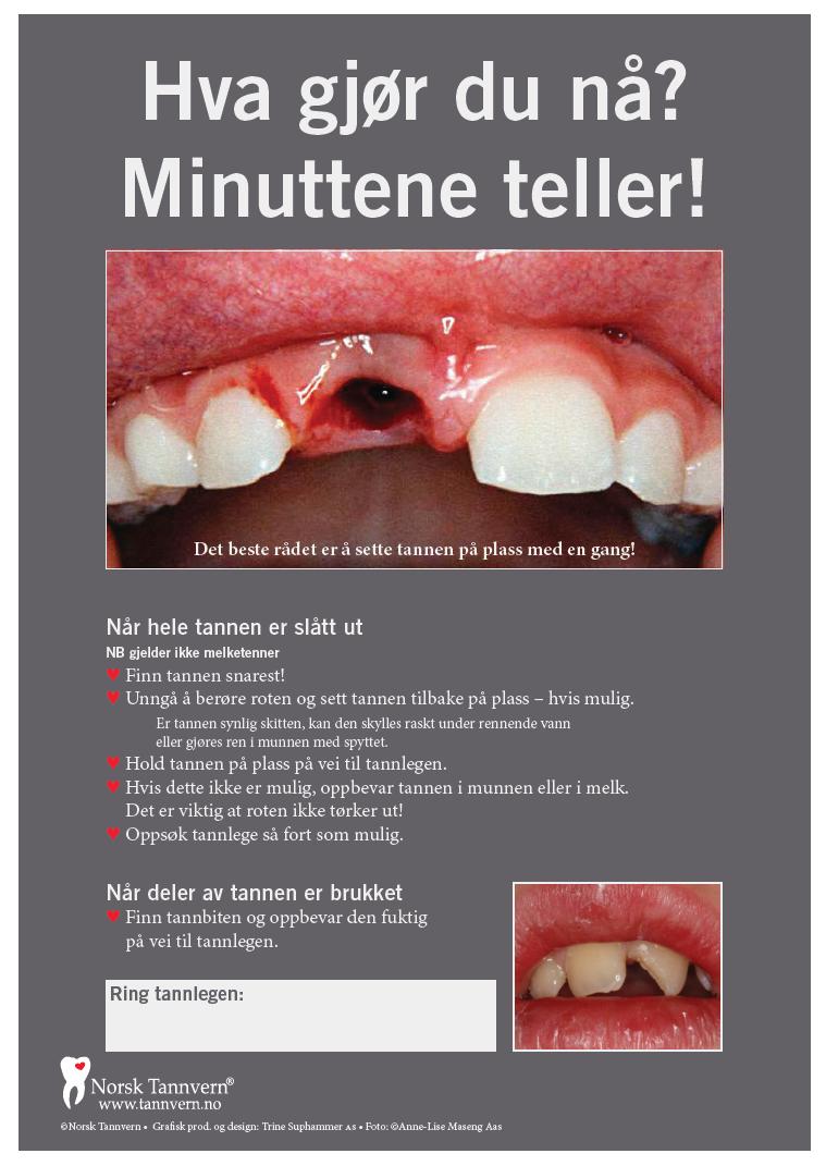 Øyeblikkeilg hjelp med skade på tenner